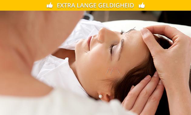 Acupunctuurbehandeling (60 min)
