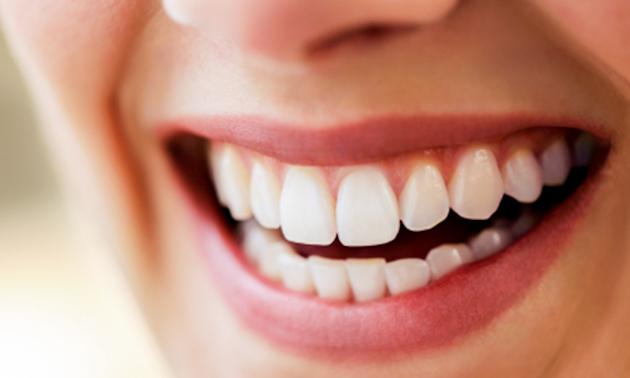 Tandenbleekbehandeling