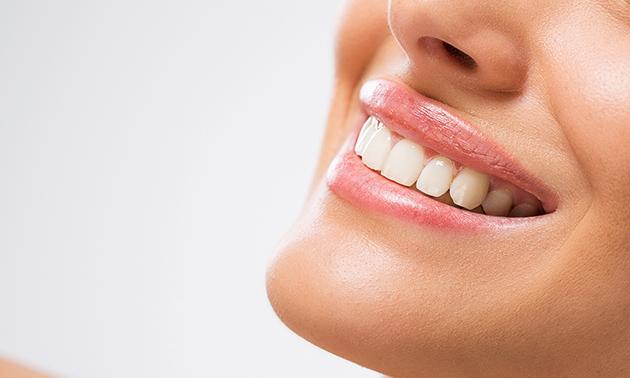 Tandenbleekbehandeling (5 x 20 minuten)