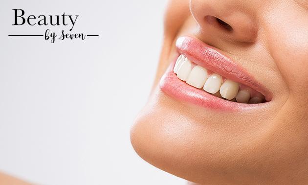 Normale of luxe tandenbleekbehandeling (40 min)