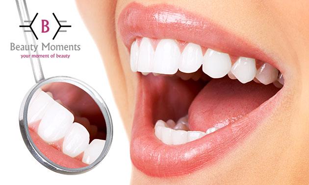 Tandenbleekbehandeling(en)