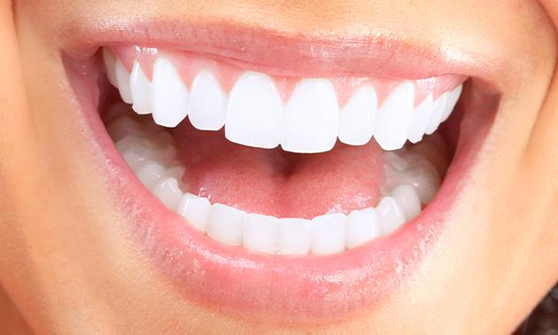 Tandenbleekbehandeling (2x 20 minuten)