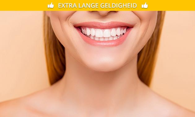 Tandenbleekbehandeling naar keuze