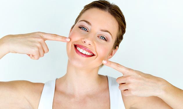 Tandenbleekbehandeling (20 of 60 min)