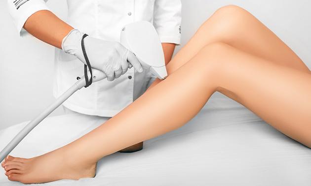4 laserontharingsbehandelingen
