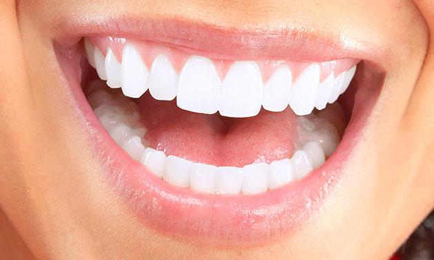Tanden whitening voor 1 of 2 personen