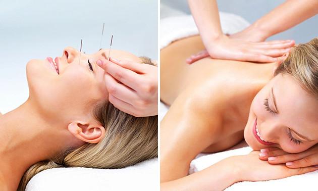Tuinamassage of acupunctuursessie