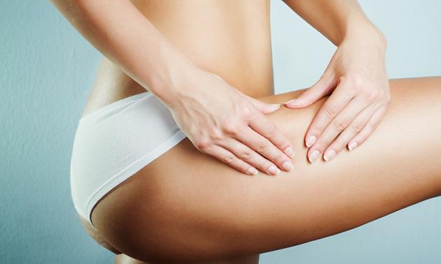 Anti-cellulitekuur (4 behandelingen)
