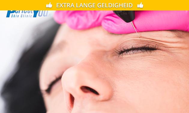 Huidverjonging door PlexR bij Perfect You Skin Clinics