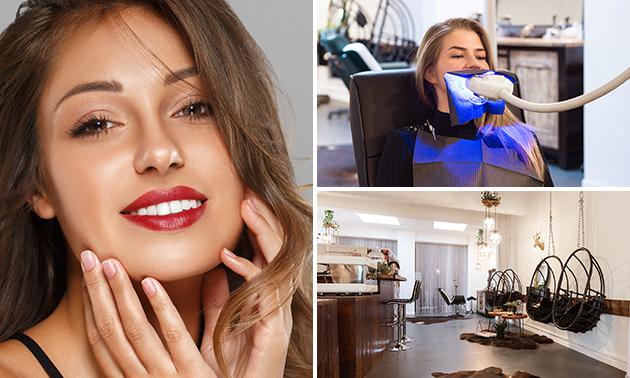 Tandenbleekbehandeling + polijsten