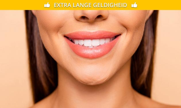 Tanden witten